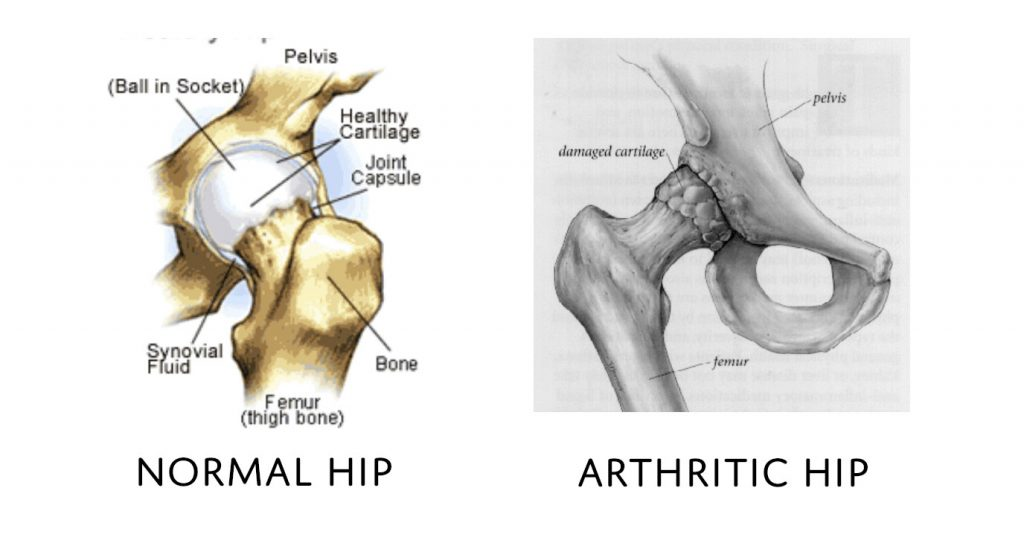 Normal and Arthritic Hips